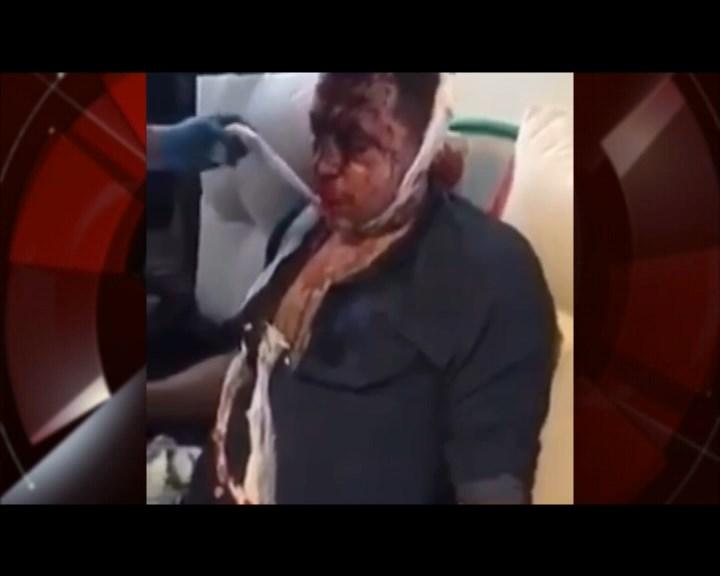 Поранений у Харкові поліцейський розслідував гучну справу Сармата
